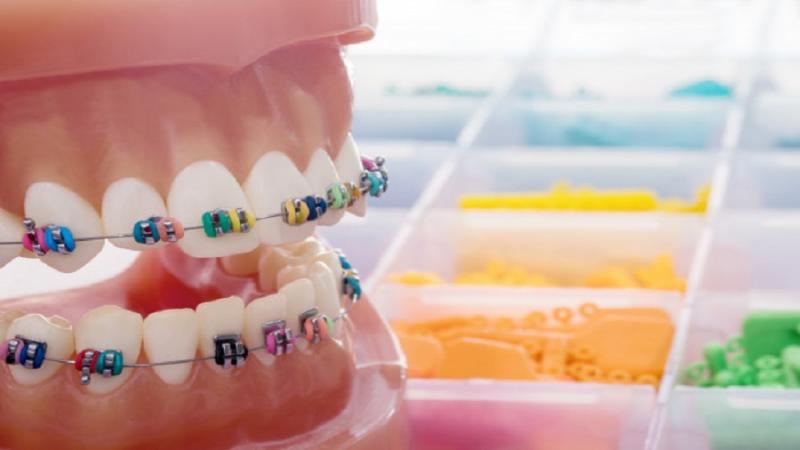 Ortodoncia Por Que Es Importante Este Tratamiento Dental